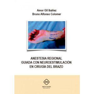 ANESTESIA REGIONAL GUIADA CON NEUROESTIMULACION EN CIRUGIA DEL BRAZO