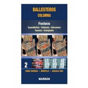 BALLESTEROS COLUMNA TOMO 2: FRACTURAS